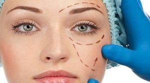 chirurgie-du-visage-tunisie
