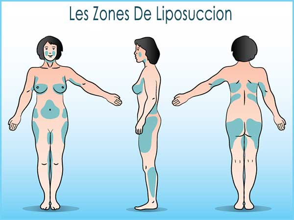 zones-liposuccion-tunisie