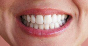 Couronne dentaire Tunisie